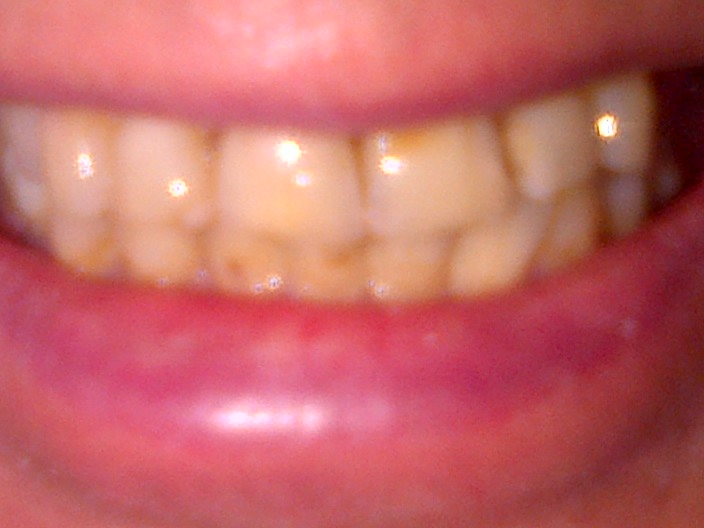 Autism and Challenging Behaviour Part Six. A trip to the dentist and brushing those teeth.