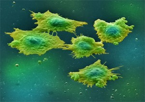 Stem cell therapy -