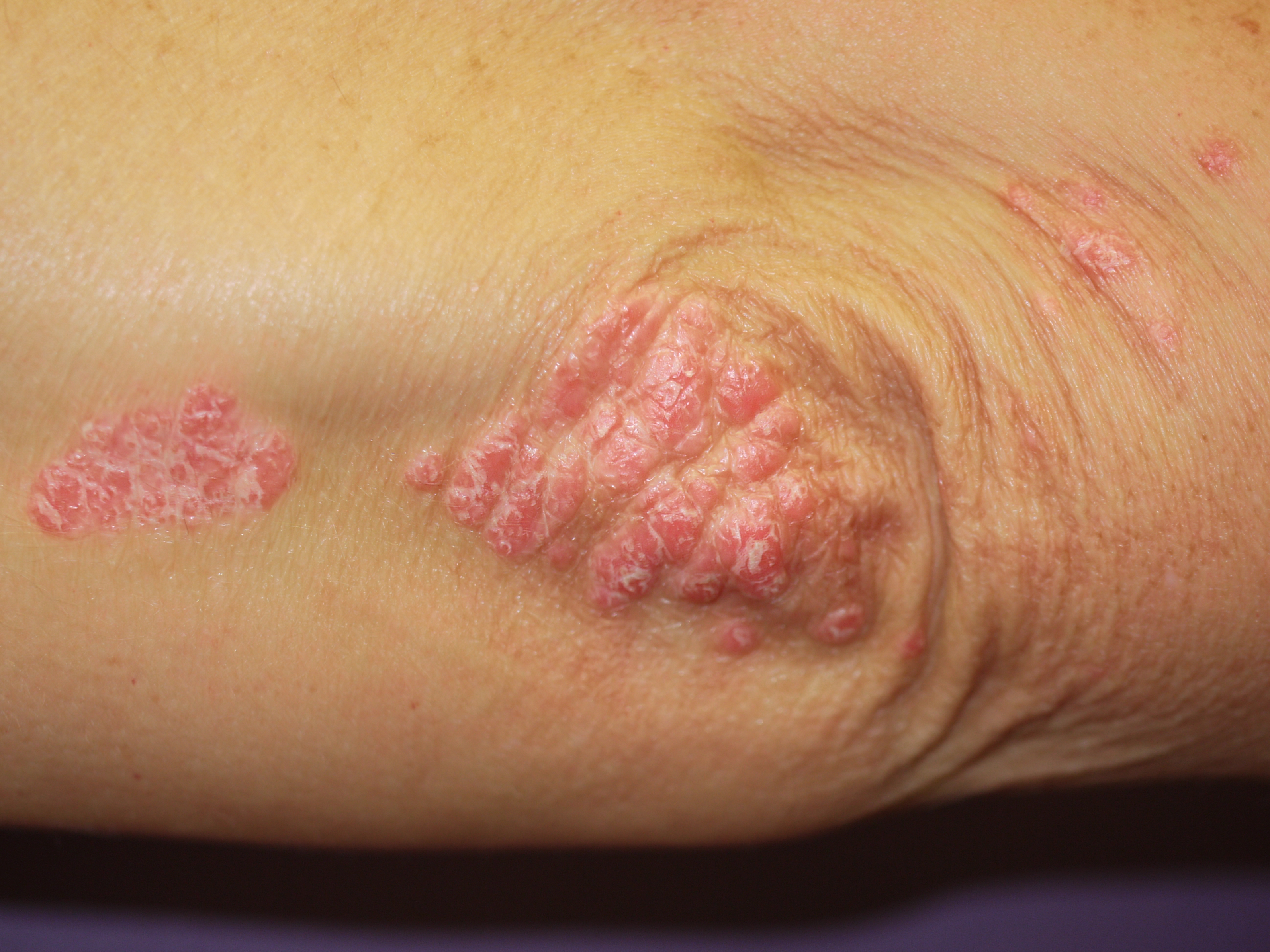 pictures of psoriasis #10