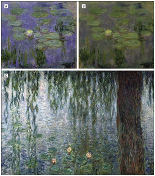 Cataracts and Monet