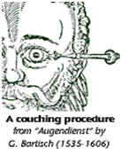 Cataracts  - couching procedure
