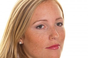 Age spots and the anti-aging process