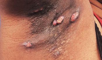Hidradenitis suppurativa (HS)