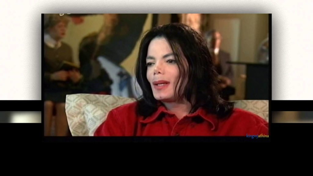 Vitiligo - Michael Jackson had the condition