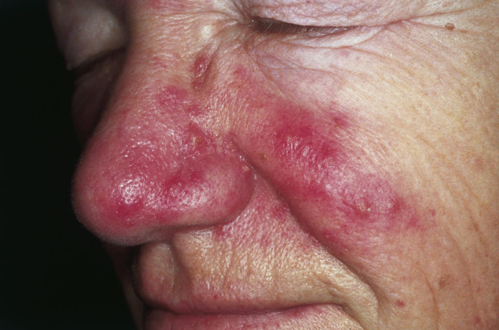 M. Sand, D. Sand, C. Thrandorf, V. Paech, P. Altmeyer, F. G. Bechara - M. Sand, D. Sand, C. Thrandorf, V. Paech, P. Altmeyer, F. G. Bechara: Cutaneous lesions of the nose. In: Head & face medicine Band 6, 2010, S. 7, ISSN 1746-160X. doi:10.1186/1746-160X-6-7. PMID 20525327.