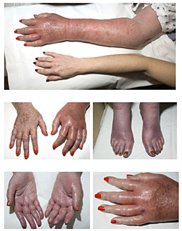Erythromelalgia: This 77-year-old woman with longstanding polycythemia vera had a six-month history of increasingly prolonged bouts of redness, swelling, and burning pain in her extremities. The severity and sites of involvement varied with each episode. At presentation, she was unable to ambulate without assistance. by Herbert L. Fred, MD and Hendrik A. van Dijk - http://cnx.org/content/m14932/latest/