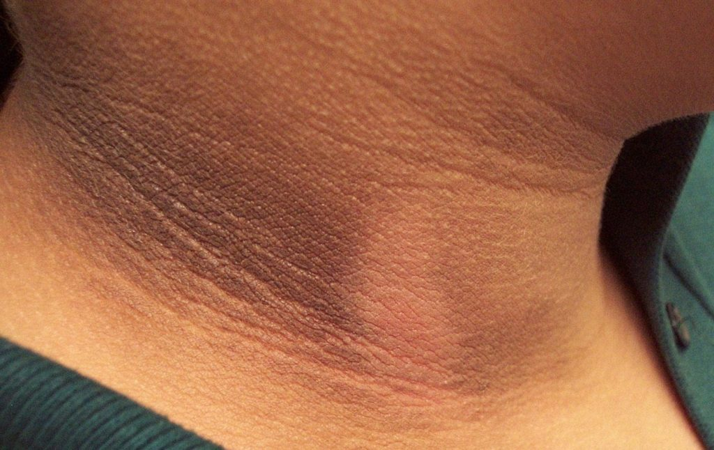 Acanthosis Nigricans What Are The Signs And Why We Need