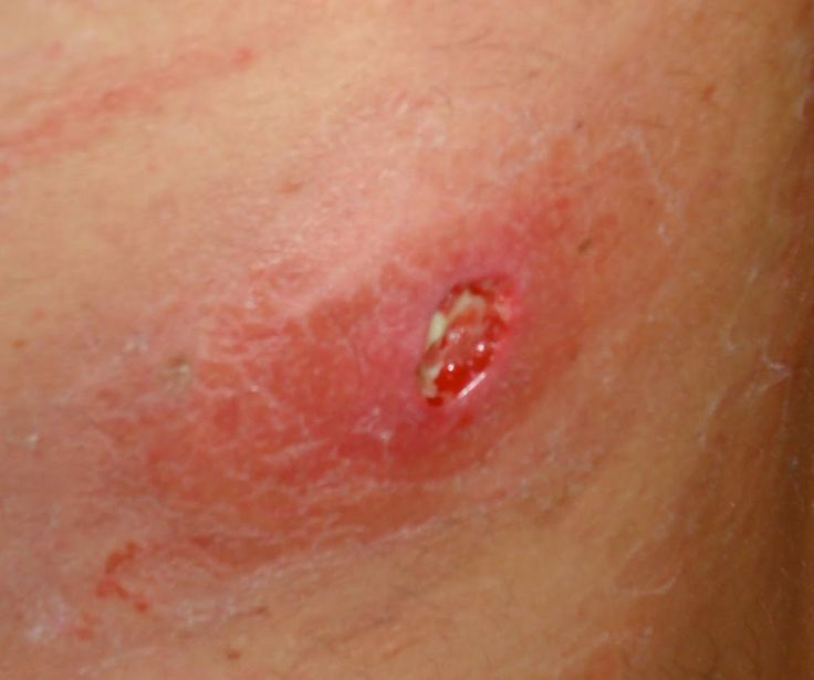 signs of mrsa infection on skin